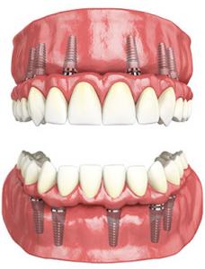 tampa implant dentist